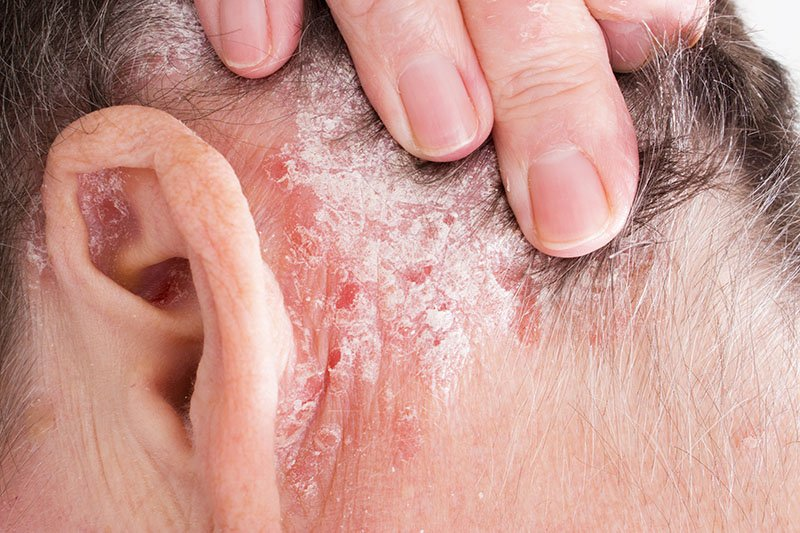 How can Psoriasis be treated?